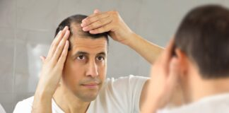 Frequently Asked Questions about Hair Transplant