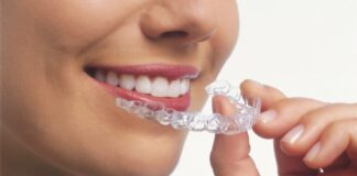 Factors to Consider Before Getting Clear Aligners